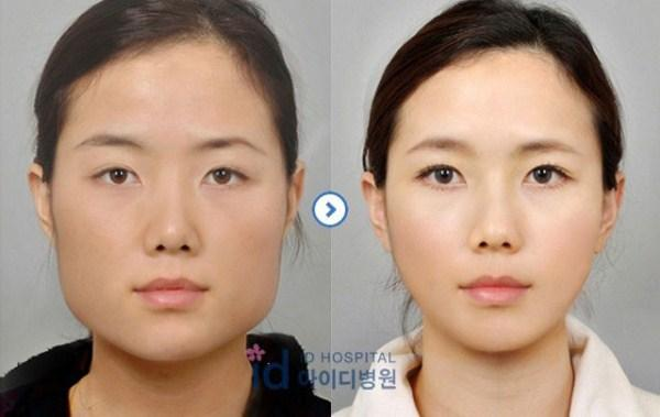 Before-And-After-Of-South-Korean-Cosmetic-Surgery-13
